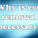 Why is eye removal necessary?